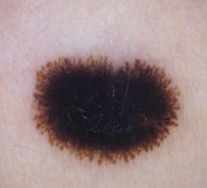 Dermatoscopia.Patrón en estallido de estrellas
