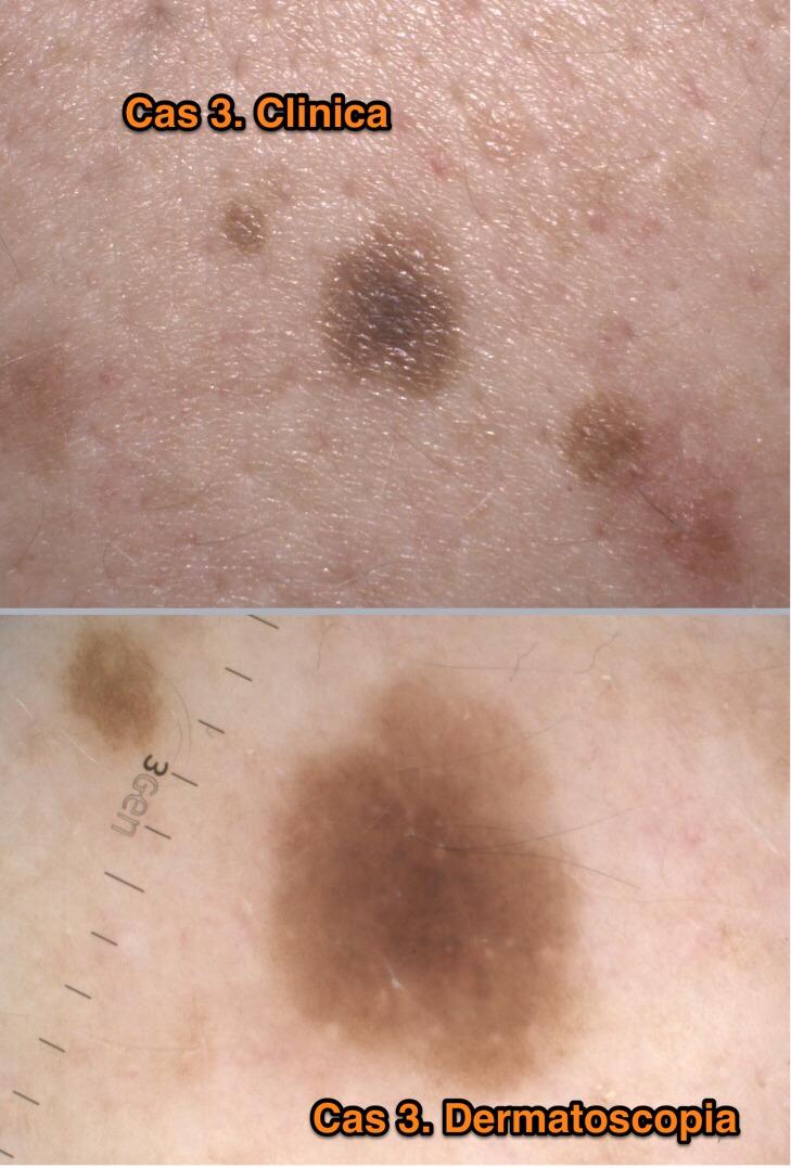 Casos dermatoscpia 8R