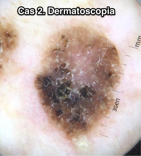 cas2-foto-dermatoscopica