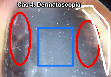 DERMATOSCOPIA CASOS 11