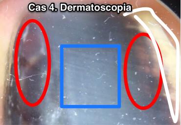 cas4-foto-dermatoscopica-amb-cercles