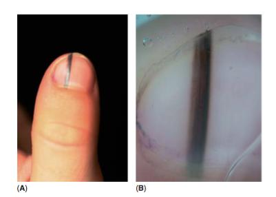 (A) Imagen clínica de nevus oscuro en la matriz ungüeal (B) La dermatoscopia muestra lineas paralelas marrones con grosores y espaciado regular