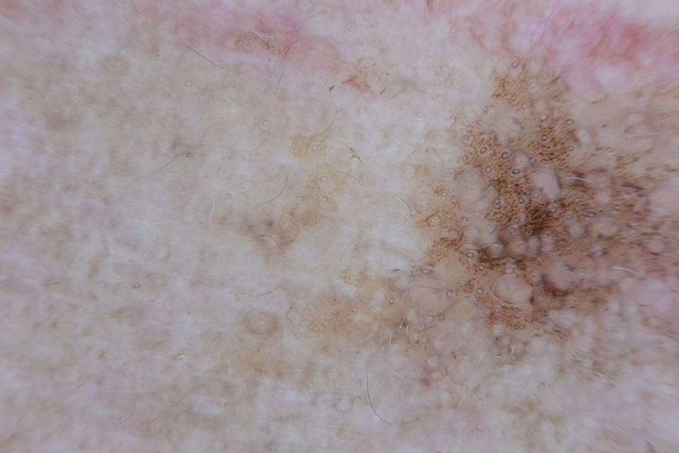 Dermatoscopia Lentigo solar
