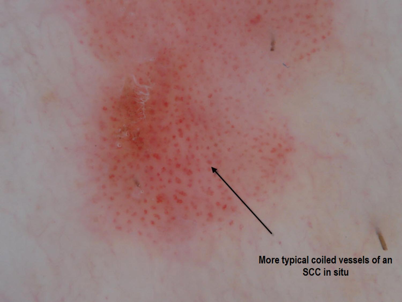 Cliff Rosendhal MD. Carcinoma espinocelular in situ