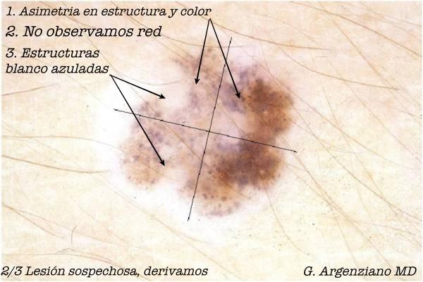 Nevus melanocítico