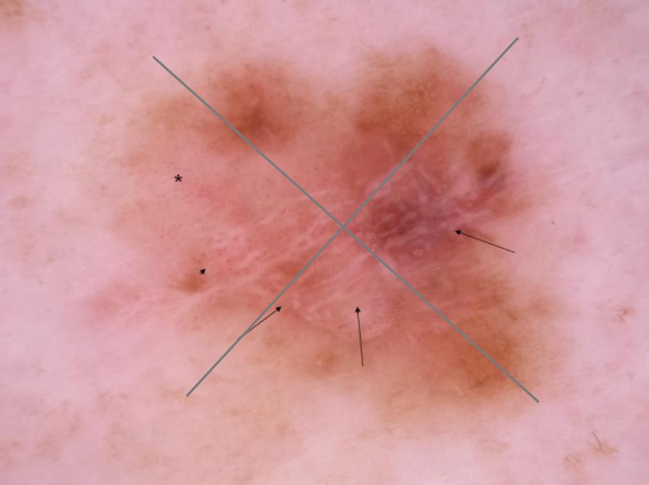 Dermatoscopia. Lista de los 3 puntos