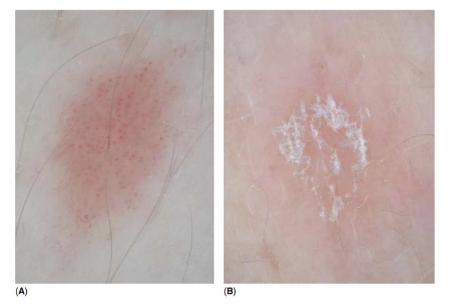 Psoriasis dermatoscopia