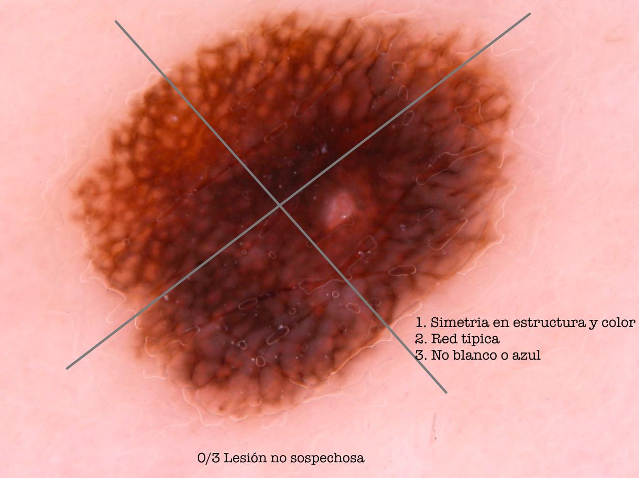 Nevus melanocitico juntural. Lista de los 3 puntos