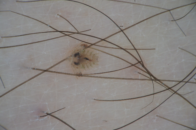 dermatoscopia pediculosis
