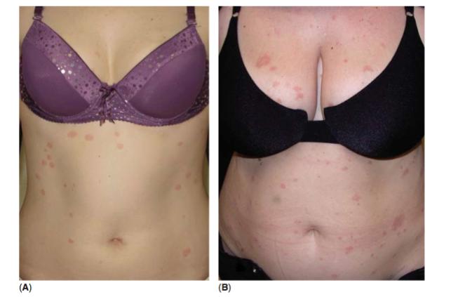 Psoriasis vs Pitiriasis rosada